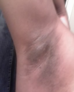 armpit-whitening